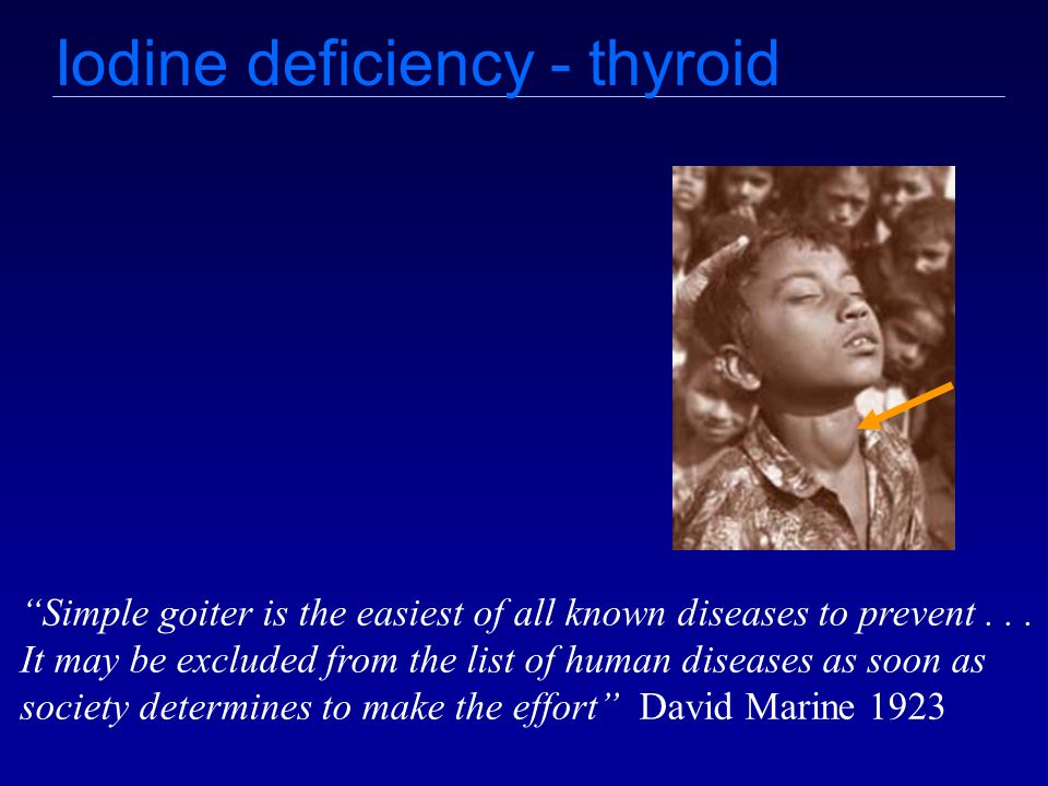 Iodine deficiency - thyroid Simple goiter is the easiest of all known diseases to prevent...