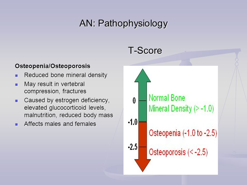 AN: Pathophysiology Osteopenia/Osteoporosis Reduced bone mineral density Reduced bone mineral density May result in vertebral compression, fractures May result in vertebral compression, fractures Caused by estrogen deficiency, elevated glucocorticoid levels, malnutrition, reduced body mass Caused by estrogen deficiency, elevated glucocorticoid levels, malnutrition, reduced body mass Affects males and females Affects males and females T-Score