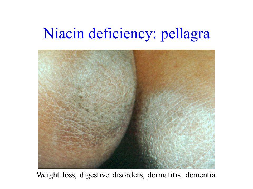 Weight loss, digestive disorders, dermatitis, dementia Niacin deficiency: pellagra