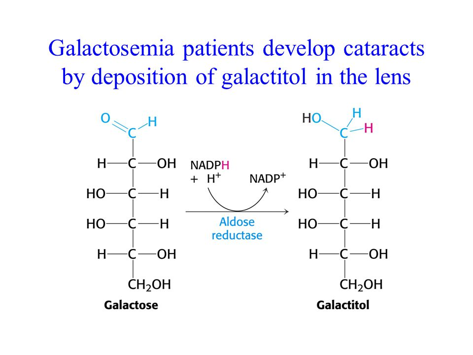 Galactosemia patients develop cataracts by deposition of galactitol in the lens