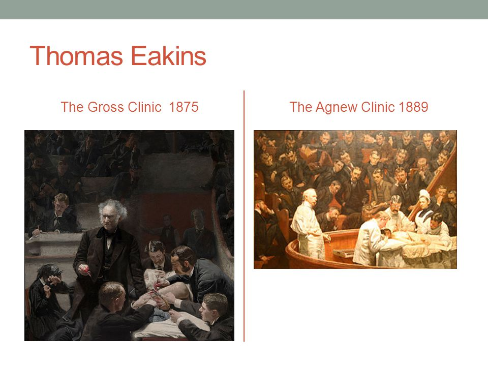 Thomas Eakins The Gross Clinic 1875The Agnew Clinic 1889