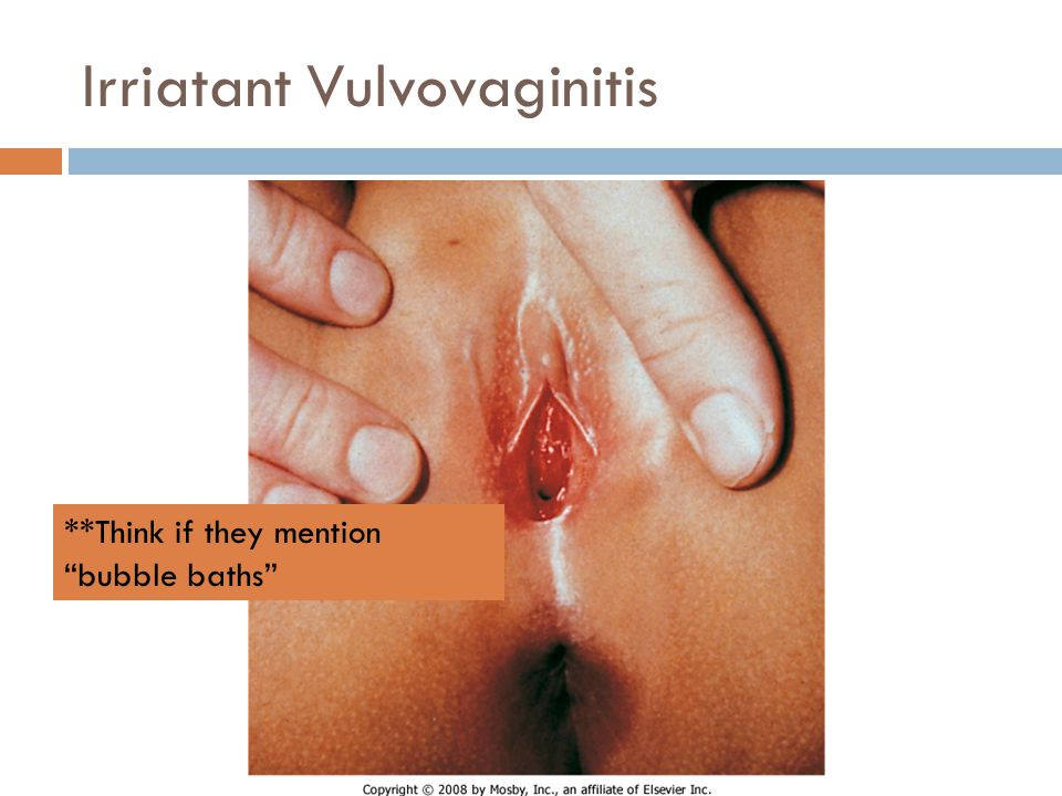 Irriatant Vulvovaginitis **Think if they mention bubble baths