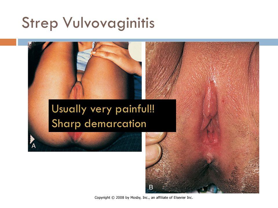 Strep Vulvovaginitis Usually very painful!! Sharp demarcation