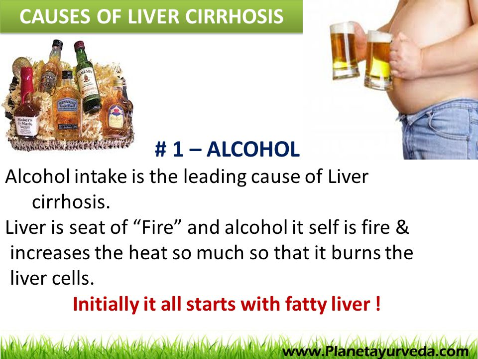 "CAUSES OF LIVER CIRRHOSIS # 1 – ALCOHOL Alcohol intake is the leading cause of Liver cirrhosis. Liver is seat of ""Fire"" and alcohol it self is fire &"