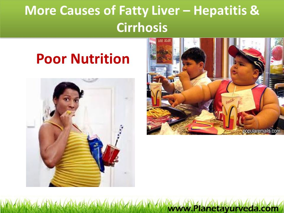 More Causes of Fatty Liver – Hepatitis & Cirrhosis Poor Nutrition