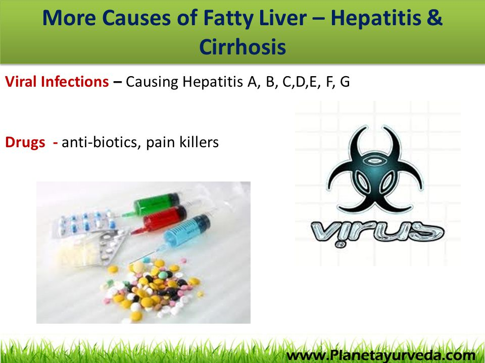 More Causes of Fatty Liver – Hepatitis & Cirrhosis Viral Infections – Causing Hepatitis A, B, C,D,E, F, G Drugs - anti-biotics, pain killers