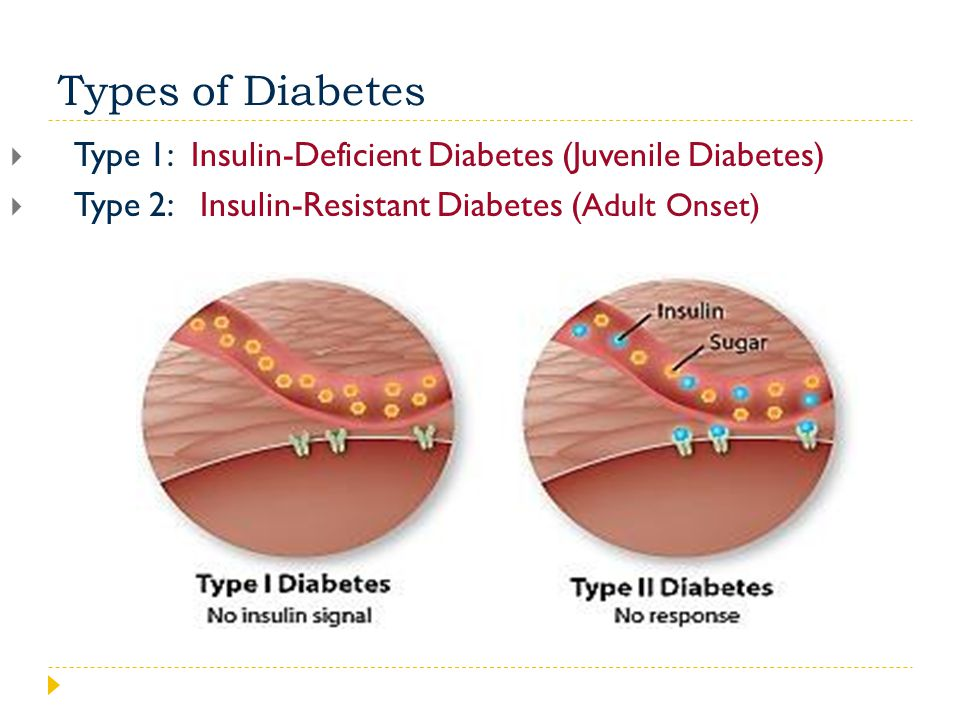 Types of Diabetes  Type 1: Insulin-Deficient Diabetes (Juvenile Diabetes)  Type 2: Insulin-Resistant Diabetes ( Adult Onset)