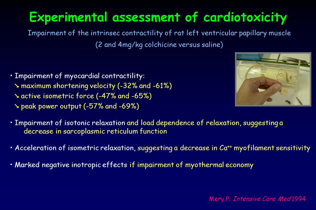 Experimental assessment of cardiotoxicity Impairment of myocardial contractility:  maximum shortening velocity (-32% and -61%)  active isometric for