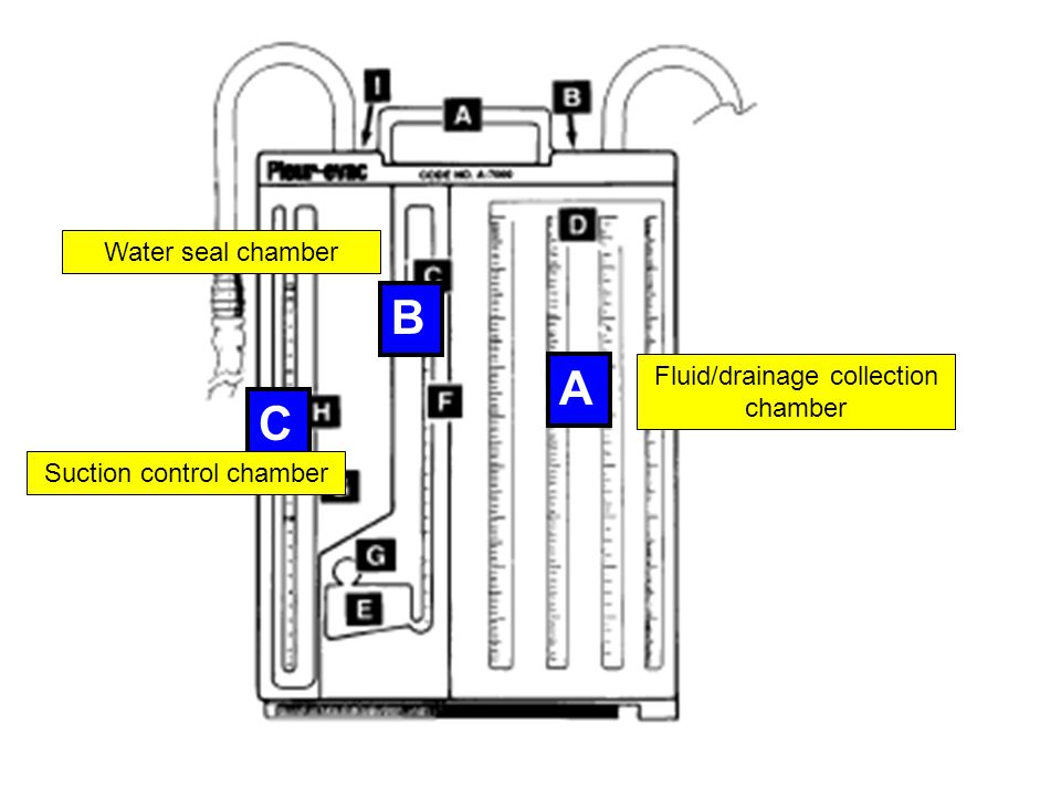 A B C Fluid/drainage collection chamber Water seal chamber Suction control chamber