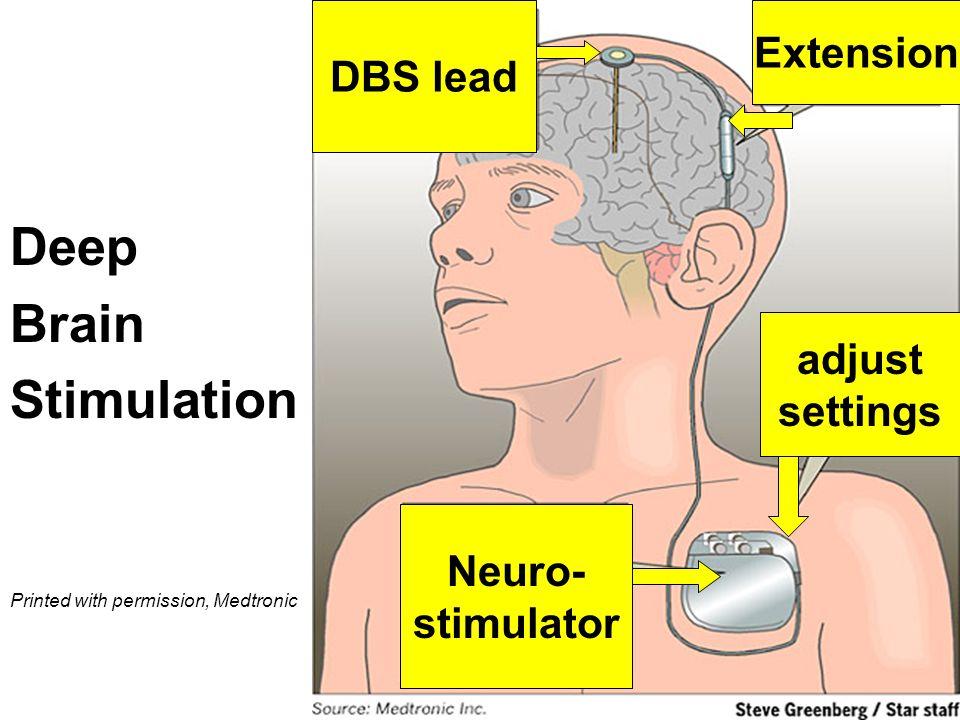Surgical Treatment - Experimental Deep Brain Stimulation (DBT)