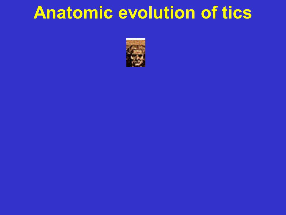 Tics: Characteristics Anatomic evolution of tics top →bottom midline→peripheral simple→complex