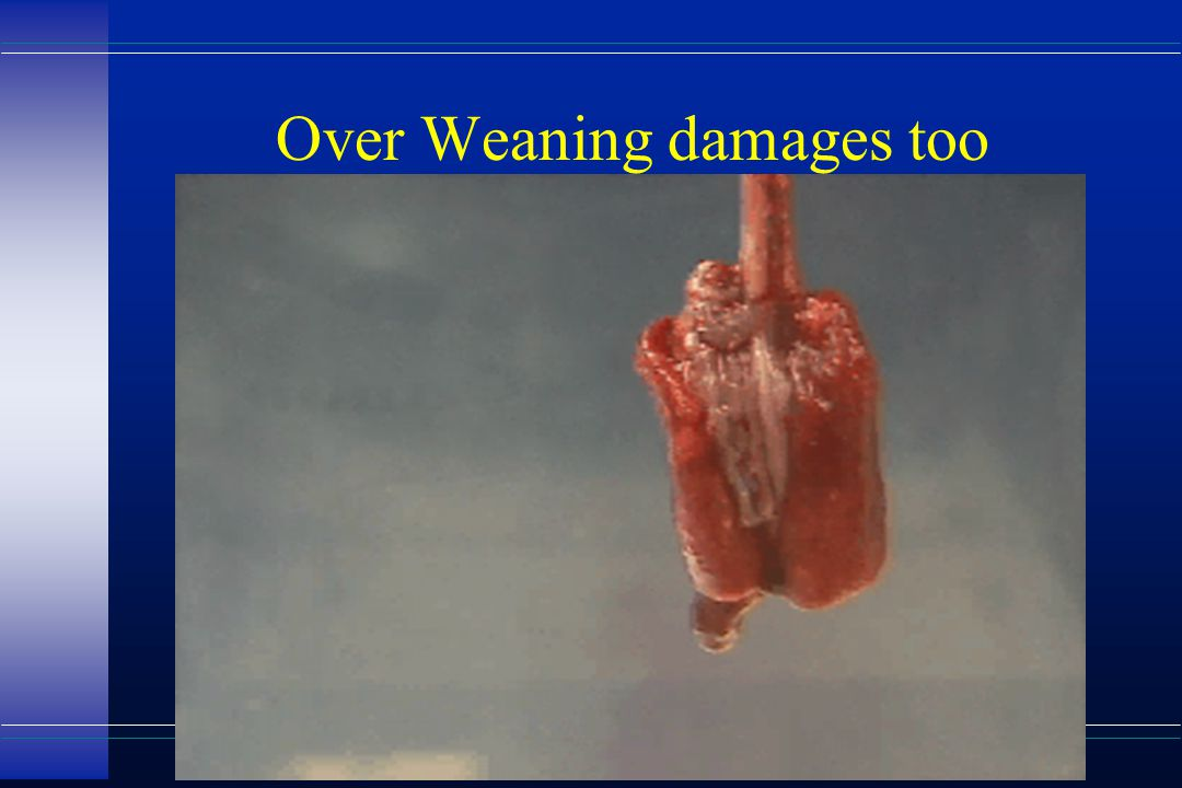 Over Weaning damages too