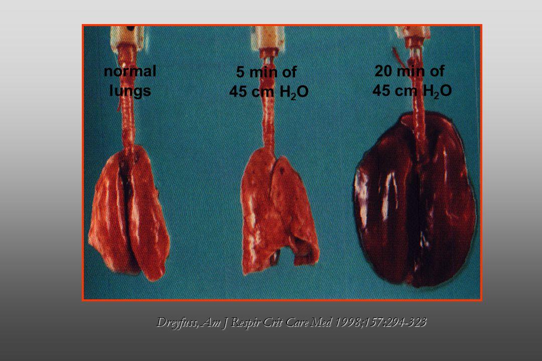 Dreyfuss, Am J Respir Crit Care Med 1998;157:294-323 normal lungs 5 min of 45 cm H 2 O 20 min of 45 cm H 2 O