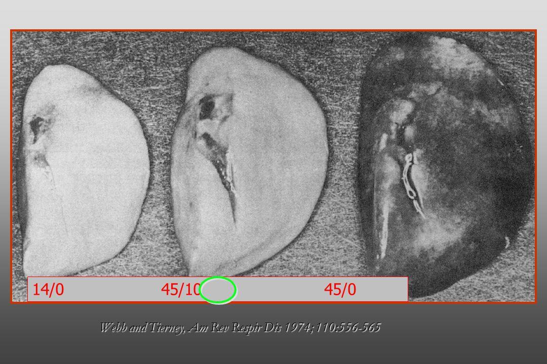 Webb and Tierney, Am Rev Respir Dis 1974; 110:556-565 14/0 45/10 45/0
