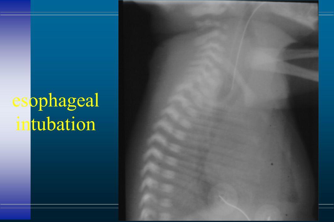 esophageal intubation
