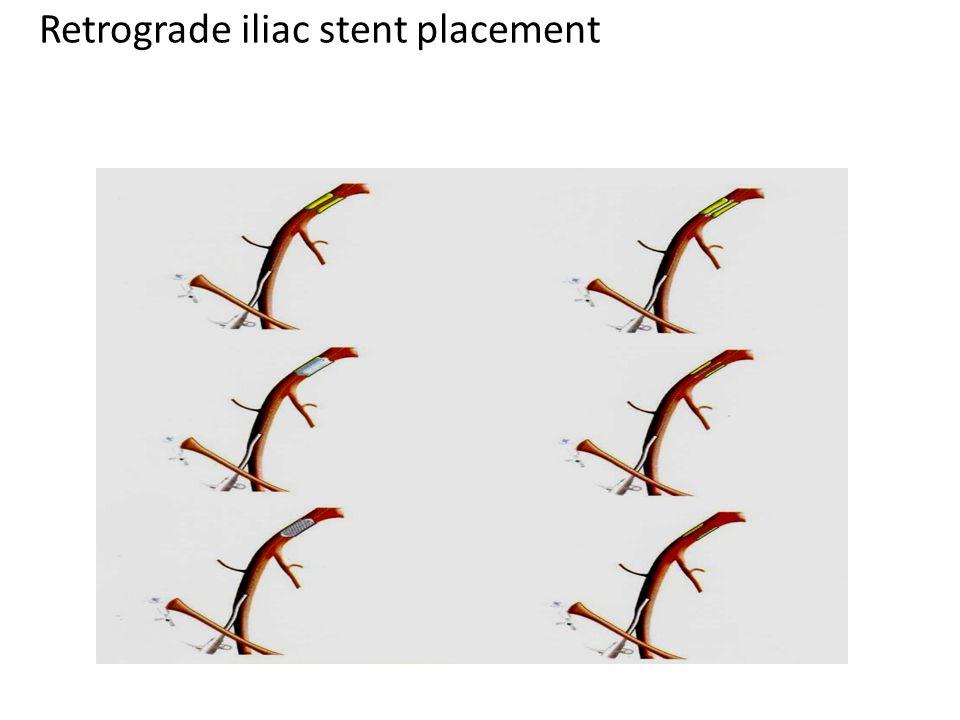 Retrograde iliac stent placement