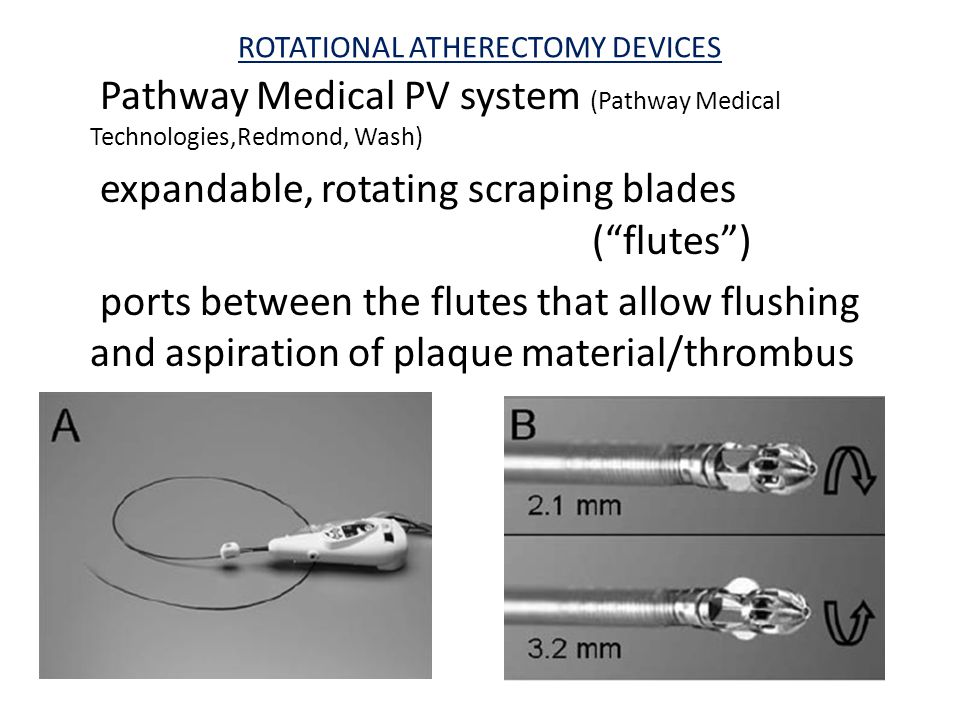 ROTATIONAL ATHERECTOMY DEVICES Pathway Medical PV system (Pathway Medical Technologies,Redmond, Wash) expandable, rotating scraping blades ( flutes ) ports between the flutes that allow flushing and aspiration of plaque material/thrombus
