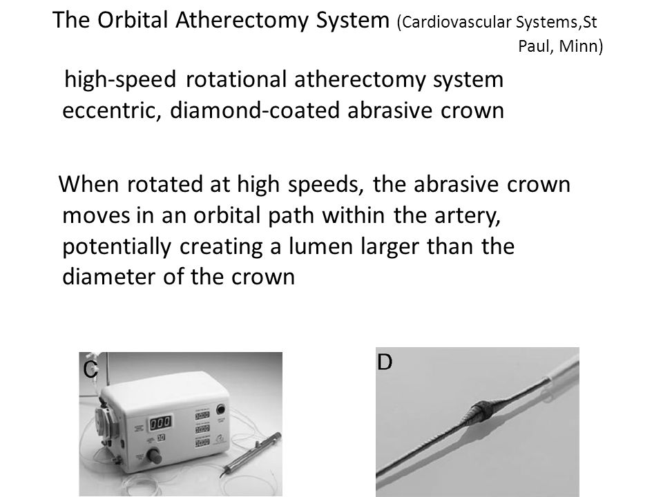 The Orbital Atherectomy System (Cardiovascular Systems,St Paul, Minn) high-speed rotational atherectomy system eccentric, diamond-coated abrasive crown When rotated at high speeds, the abrasive crown moves in an orbital path within the artery, potentially creating a lumen larger than the diameter of the crown