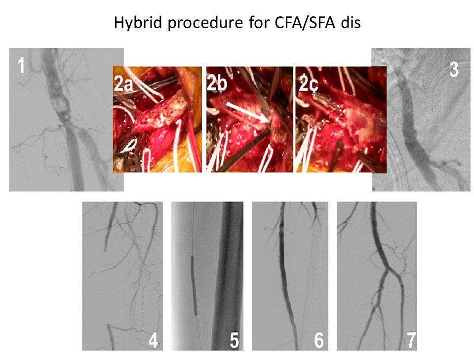 Hybrid procedure for CFA/SFA dis