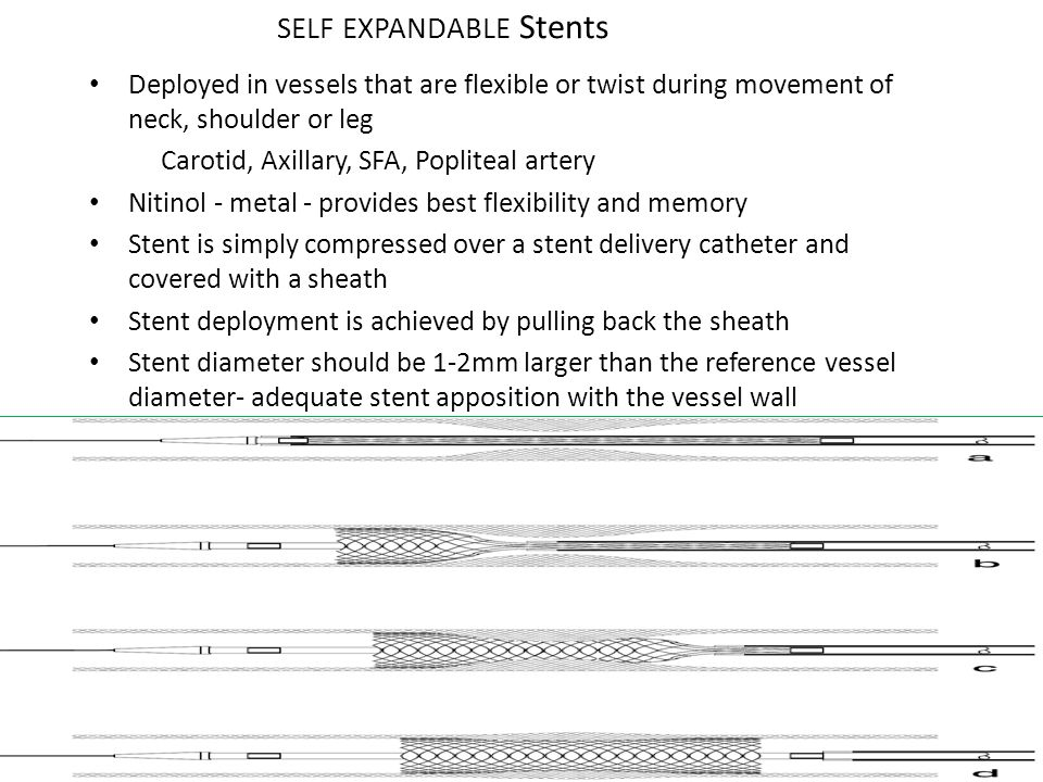 SELF EXPANDABLE Stents Deployed in vessels that are flexible or twist during movement of neck, shoulder or leg Carotid, Axillary, SFA, Popliteal arter