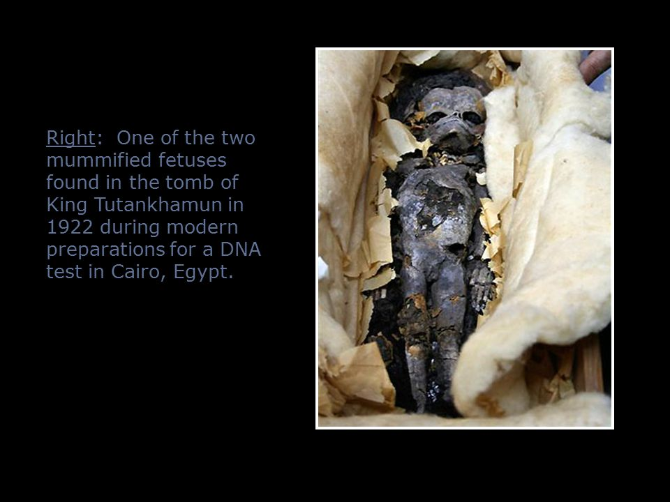 Right: One of the two mummified fetuses found in the tomb of King Tutankhamun in 1922 during modern preparations for a DNA test in Cairo, Egypt.