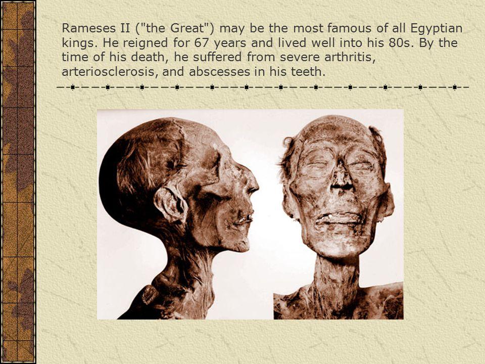 Rameses II (