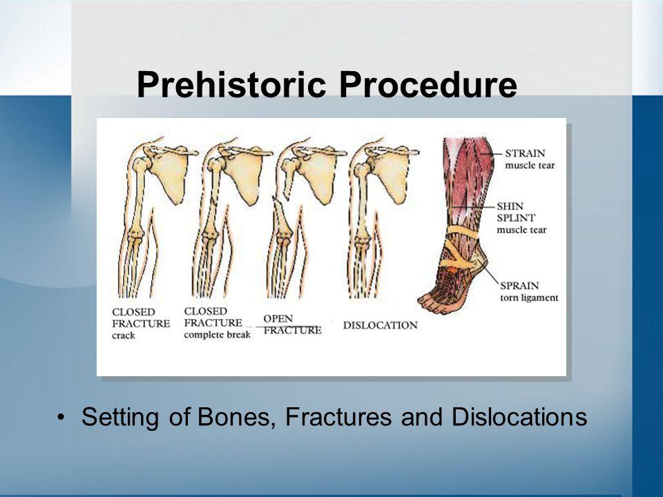 Prehistoric Procedure Treating Burns