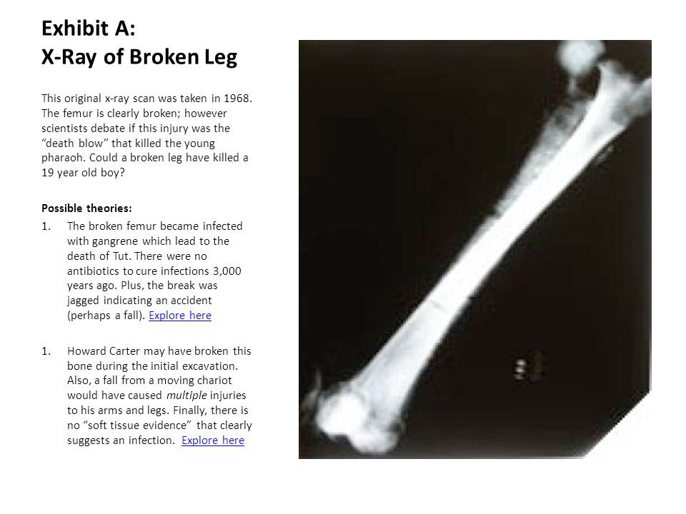 Exhibit A: X-Ray of Broken Leg This original x-ray scan was taken in 1968. The femur is clearly broken; however scientists debate if this injury was t