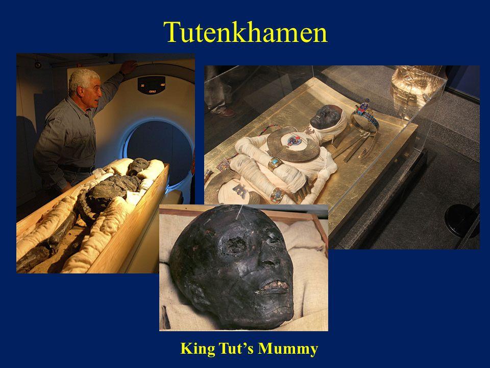 Tutenkhamen King Tut's Mummy