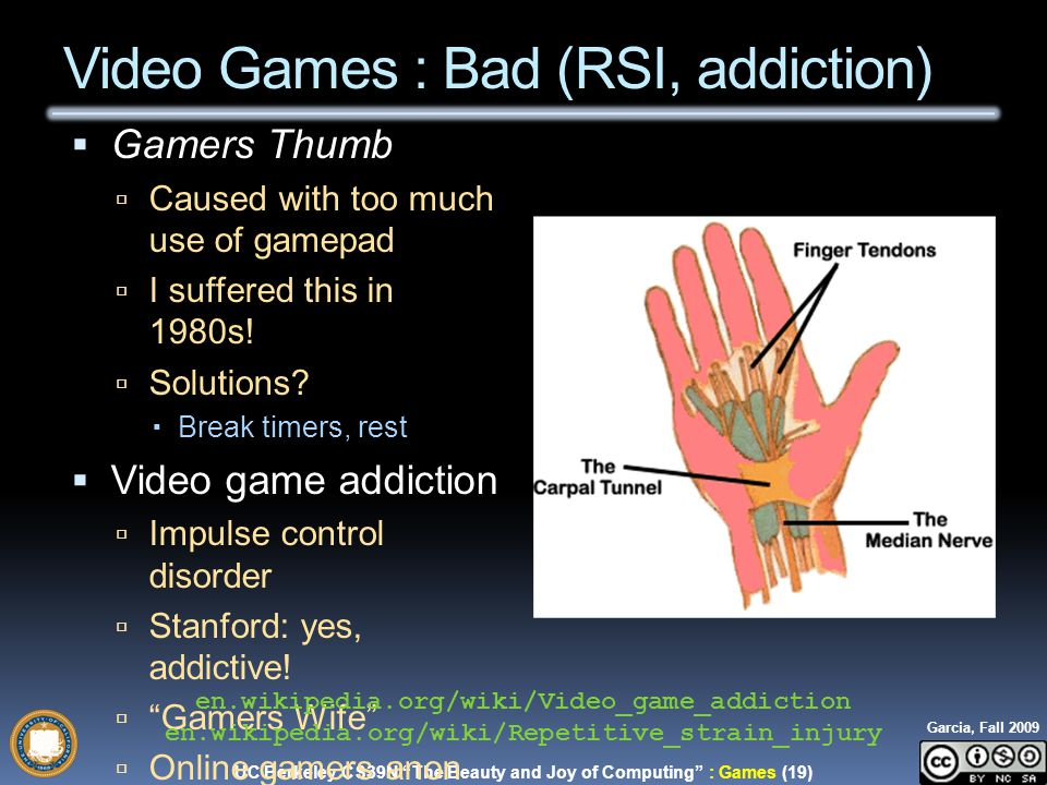 UC Berkeley CS39N The Beauty and Joy of Computing : Games (19) Garcia, Fall 2009  Gamers Thumb  Caused with too much use of gamepad  I suffered this in 1980s.