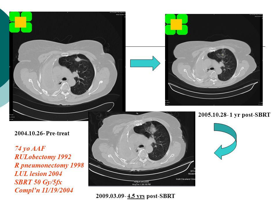 2004.10.26- Pre-treat 74 yo AAF RULobectomy 1992 R pneumonectomy 1998 LUL lesion 2004 SBRT 50 Gy/5fx Compl'n 11/19/2004 2009.03.09- 4.5 yrs post-SBRT 2005.10.28- 1 yr post-SBRT