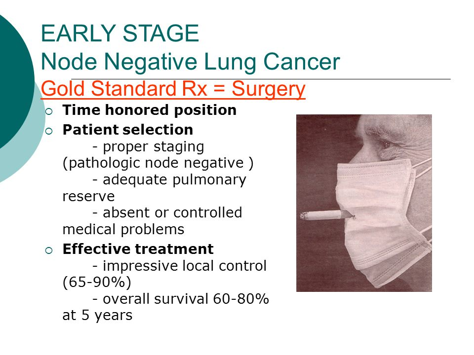 EARLY STAGE Node Negative Lung Cancer Gold Standard Rx = Surgery  Time honored position  Patient selection - proper staging (pathologic node negative ) - adequate pulmonary reserve - absent or controlled medical problems  Effective treatment - impressive local control (65-90%) - overall survival 60-80% at 5 years