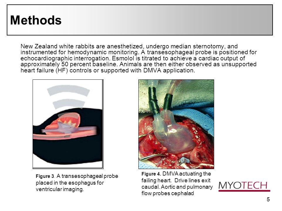 5 Methods New Zealand white rabbits are anesthetized, undergo median sternotomy, and instrumented for hemodynamic monitoring.