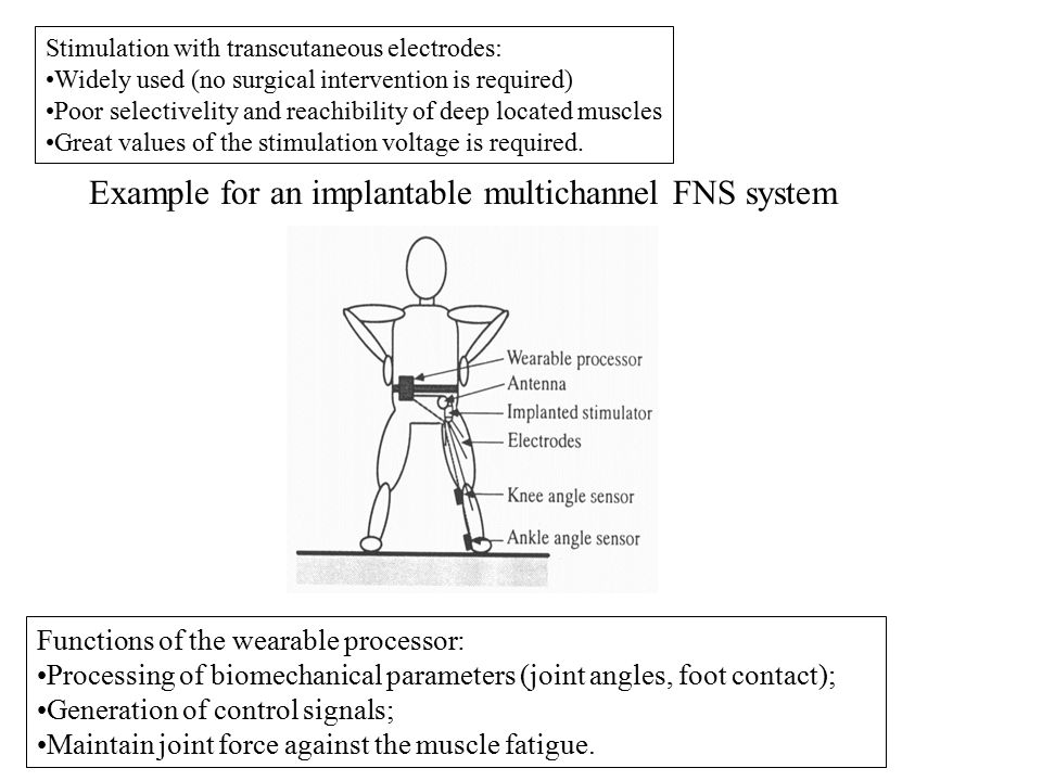 Example for an implantable multichannel FNS system Functions of the wearable processor: Processing of biomechanical parameters (joint angles, foot con