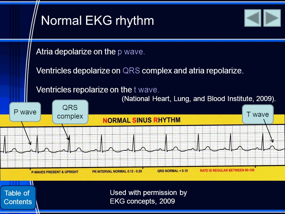 Table of Contents Normal EKG rhythm Atria depolarize on the p wave.