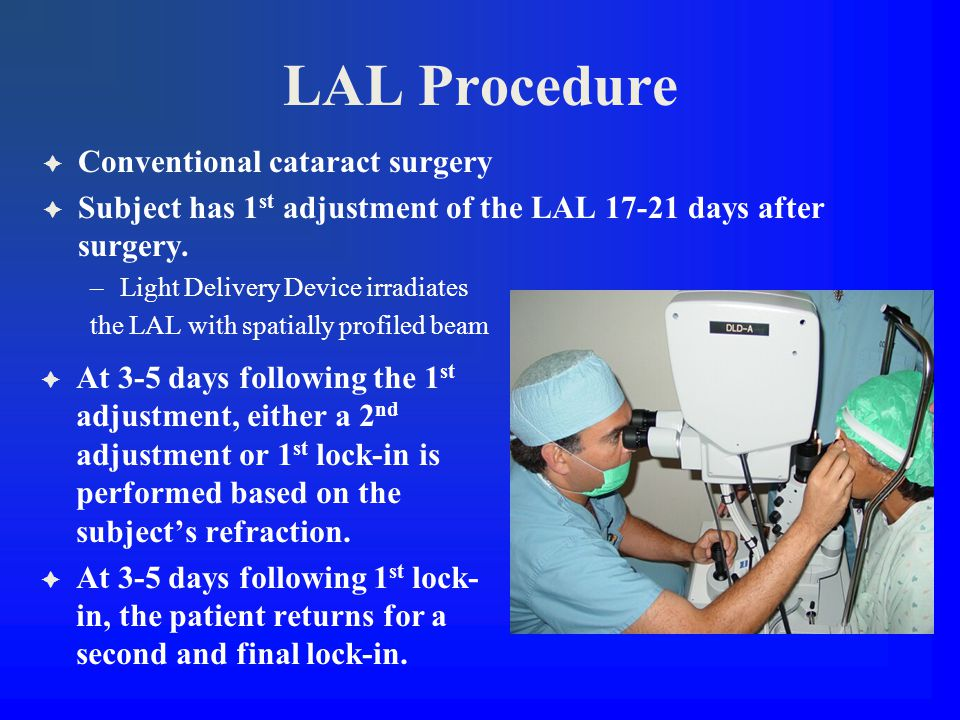 LAL Procedure  Conventional cataract surgery  Subject has 1 st adjustment of the LAL 17-21 days after surgery.