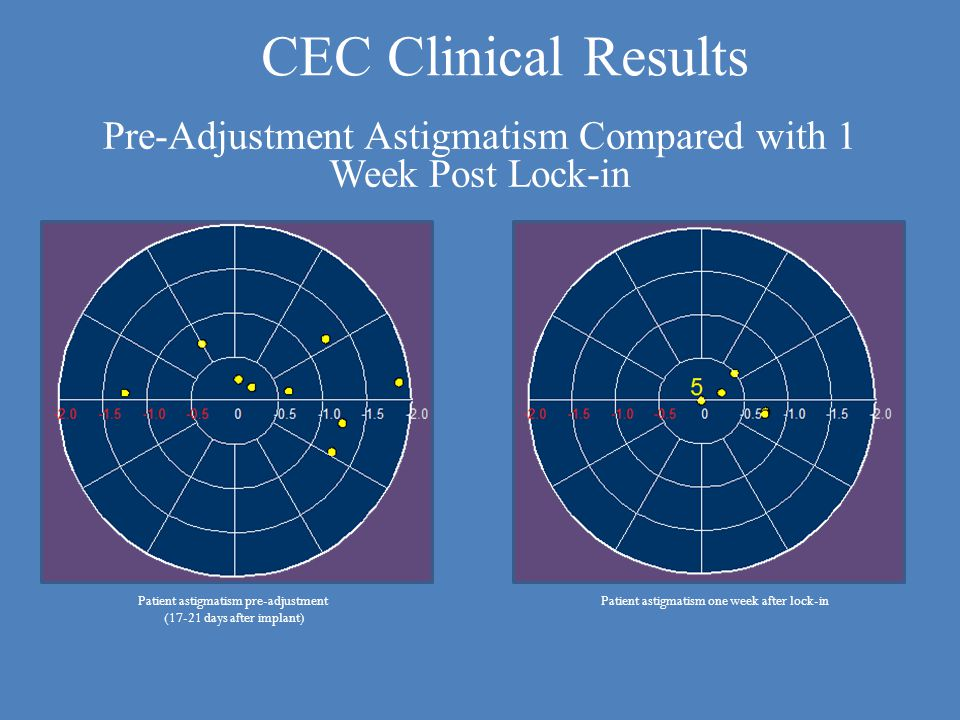 Patient astigmatism one week after lock-inPatient astigmatism pre-adjustment (17-21 days after implant) Pre-Adjustment Astigmatism Compared with 1 Week Post Lock-in CEC Clinical Results
