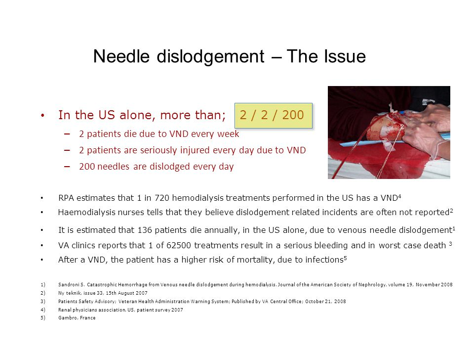 In the US alone, more than; 2 / 2 / 200 – 2 patients die due to VND every week – 2 patients are seriously injured every day due to VND – 200 needles are dislodged every day RPA estimates that 1 in 720 hemodialysis treatments performed in the US has a VND 4 Haemodialysis nurses tells that they believe dislodgement related incidents are often not reported 2 It is estimated that 136 patients die annually, in the US alone, due to venous needle dislodgement 1 VA clinics reports that 1 of 62500 treatments result in a serious bleeding and in worst case death 3 After a VND, the patient has a higher risk of mortality, due to infections 5 1)Sandroni S.