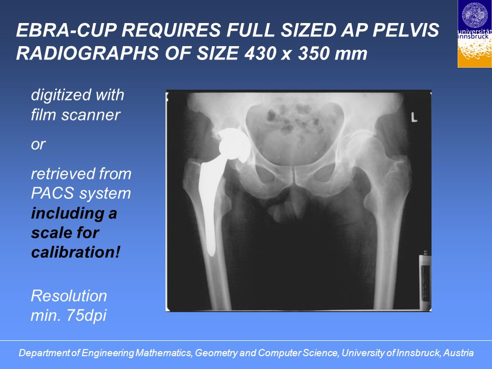 EBRA-FCA ALSO ACCEPTS HIP RADIOGRAPHS NOT SHOWING THE WHOLE PELVIS.