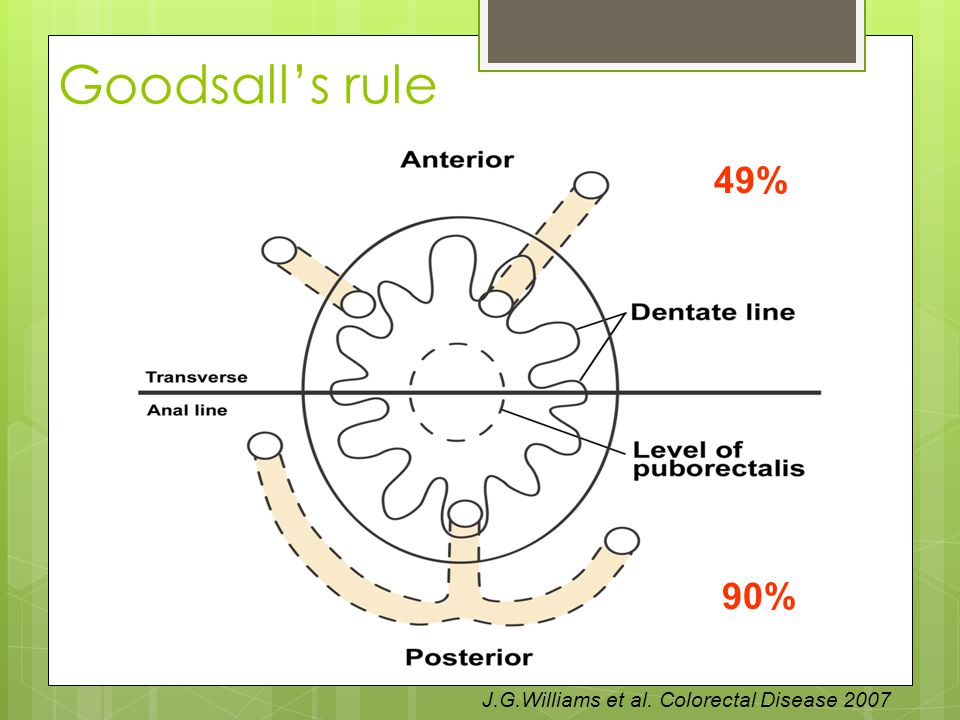 Goodsall's rule 49% 90% J.G.Williams et al. Colorectal Disease 2007