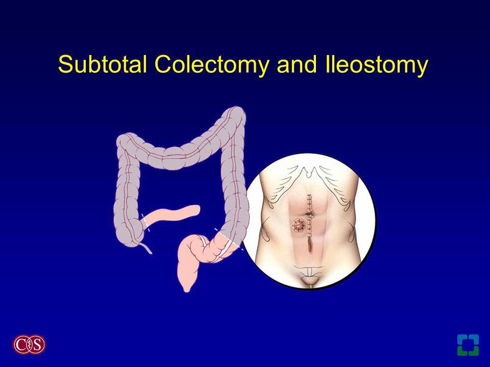 Subtotal Colectomy and Ileostomy