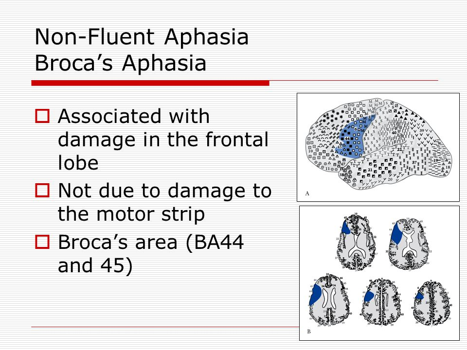 Fluent Aphasia Wernicke's Aphasia  Problems in comprehending speech – input or reception of language  Fluent meaningless speech  Word salad  Paraphasias – errors in producing specific words  Semantic paraphasias – substituting words similar in meaning ( barn – house )  Phonemic paraphasias – substituting words similar in sound ( house – mouse )  Neologisms – non words ( galump )  Deficit in categorization of sounds (e.g., l vs.