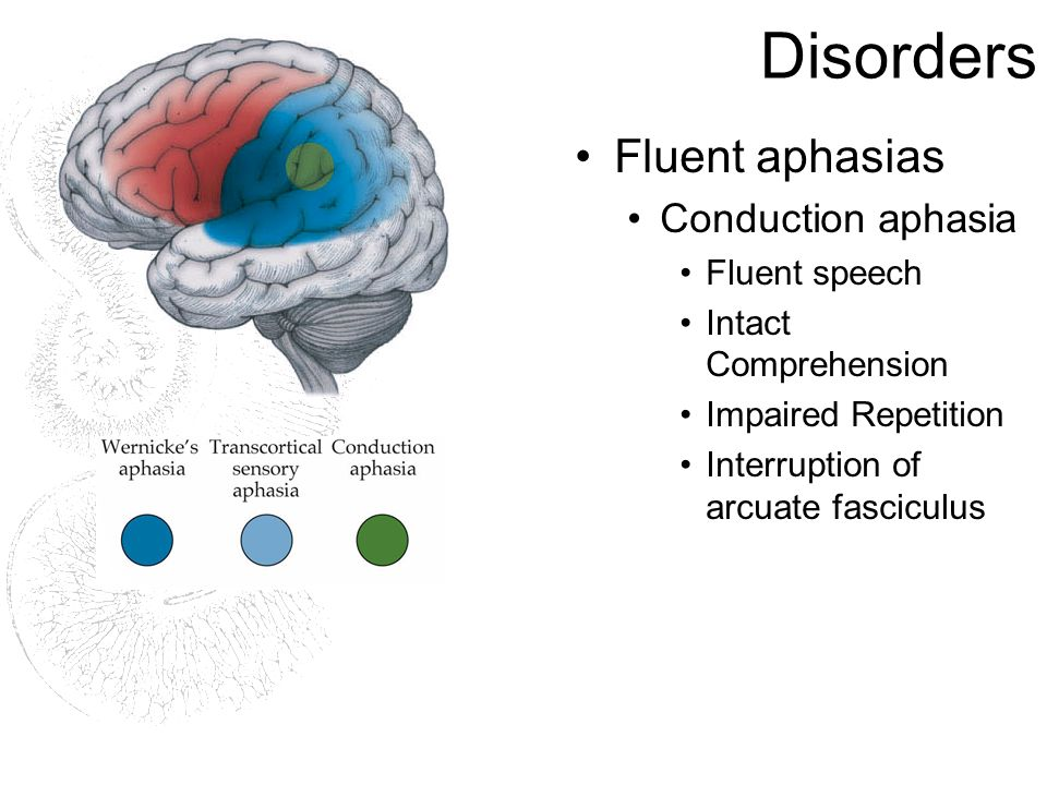 Disorders Fluent aphasias Conduction aphasia Fluent speech Intact Comprehension Impaired Repetition Interruption of arcuate fasciculus