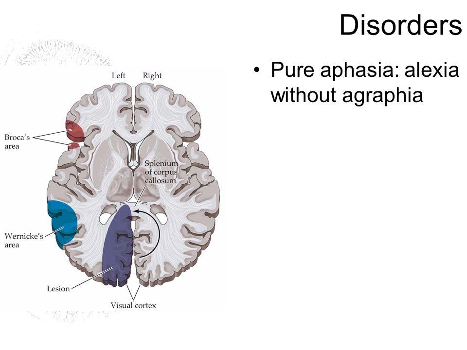 Disorders Pure aphasia: alexia without agraphia