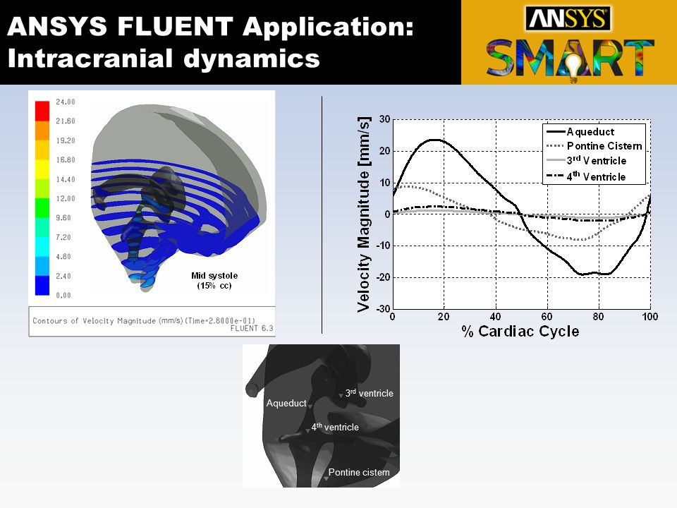 ANSYS FLUENT Application: Intracranial dynamics 4 th ventricle 3 rd ventricle Pontine cistern Aqueduct (mm/s)