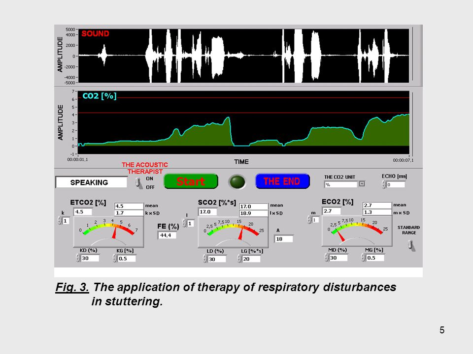 5 Fig. 3. The application of therapy of respiratory disturbances in stuttering.