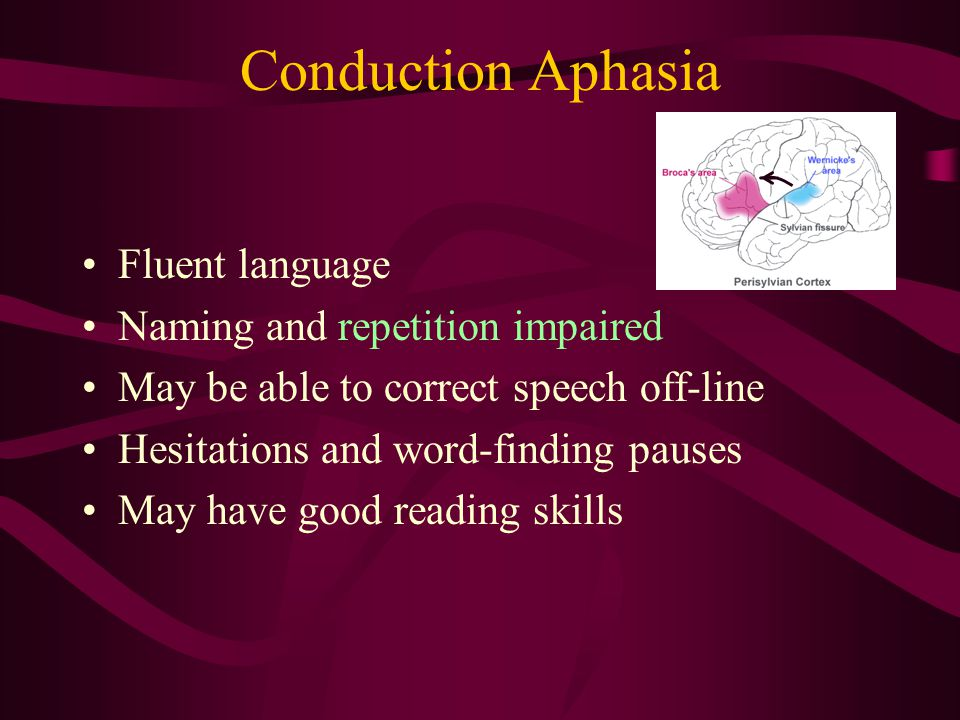 Conduction Aphasia Fluent language Naming and repetition impaired May be able to correct speech off-line Hesitations and word-finding pauses May have good reading skills