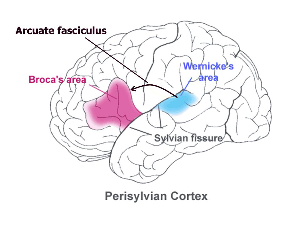 SyndromeSymptomDeficitLesion Broca's Aphasia  speech production; sparse, halting speech, missing function words, bound morphemes Impaired speech planning and production Posterior aspects of 3 rd frontal convolution Wernicke's Aphasia  Auditory comprehension, fluent speech, paraphasia, poor repetion and naming Impaired representation of sound structure of words Posterior half of the first temporal gyrus Pure motor speech disorder Disturbance of articulation, apraxia of speech, dysarthria, aphemia Disturbance of articulationOutflow from motor cortex Pure Word Deafness Disturbance of spoken word comprehension, repetition also impaired Failure to access spoken words Input tracks from auditory cortex to Wernicke's area Transcortical Motor Aphasia Disturbed spontaneous speech similar to BA; relatively preserved repetition, comprehension Disconnection between conceptual word/sentence representations and motor speech production Deep white matter tracks connecting BA to parietal lobe Transcortical Sensory Aphasia Disturbance in single word comprehension with relatively intact repetition Disturbed activation of word meanings despite normal recognition of auditorily presented words White matter tracks connecting parietal and temporal lobe Conduction Aphasia Disturbance of repetition and spontaneous speech, phonemic paraphasia Disconnetion between sound patterns and speech production mechanisms Arcuate fasciculus; connection between BA and WA Lichtheim's (1885) Aphasic Syndromes