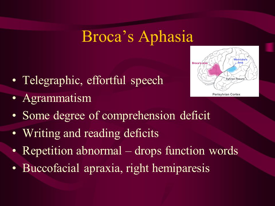 Broca's Aphasia Telegraphic, effortful speech Agrammatism Some degree of comprehension deficit Writing and reading deficits Repetition abnormal – drops function words Buccofacial apraxia, right hemiparesis
