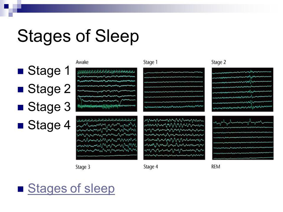 Stages of Sleep Stage 1 Stage 2 Stage 3 Stage 4 Stages of sleep